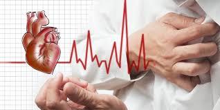 Profesi Beresiko Penyakit Jantung
